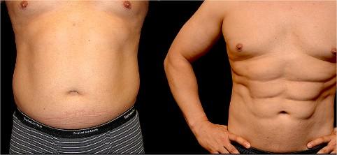 abdominoplastie chirurgie